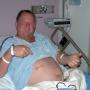 Швы после операции: как ухаживать?