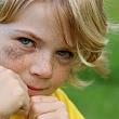 ребенок с синяком под глазом
