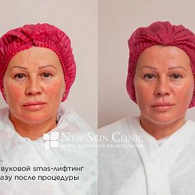НьюСкинКлиник (NewSkinClinic), центр врачебной косметологии
