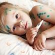 красные зудящие пятныши на теле и тумпература у ребенка с ветрянкой (ветряной оспой)