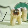 удаленный зуб, у которого кариес разъел эмаль и дентин