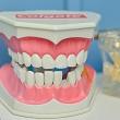 Мифы о здоровье зубов