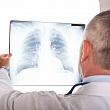 диагностика воспаления легких (пневмонии) по результатам рентгена грудной клетки